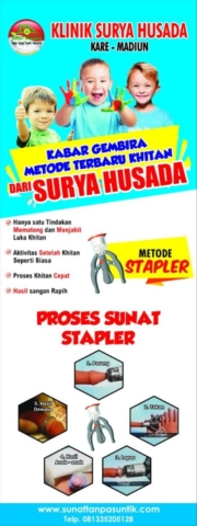proses sunat stapler baru sunat tanpa jarum suntikm Indonesia